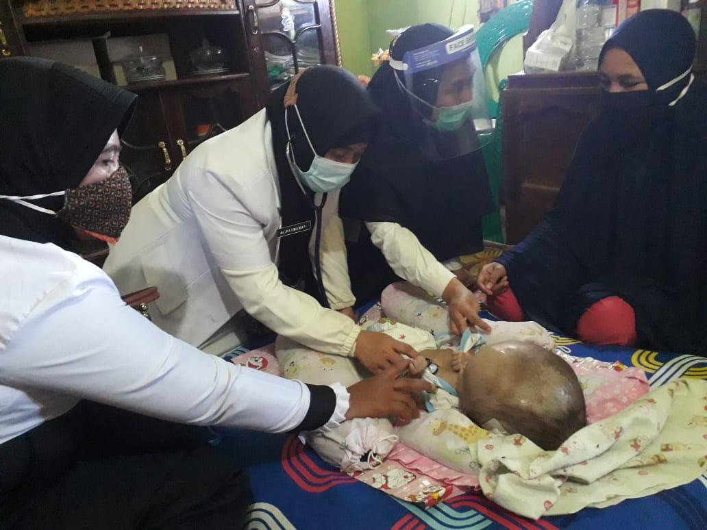Kadis Kesehatan Takalar dr Rahmawati memeriksa keadaan balita penderita hidrosefalus di desa Takalar Lama, Rabu 9 September 2020. (Ist)